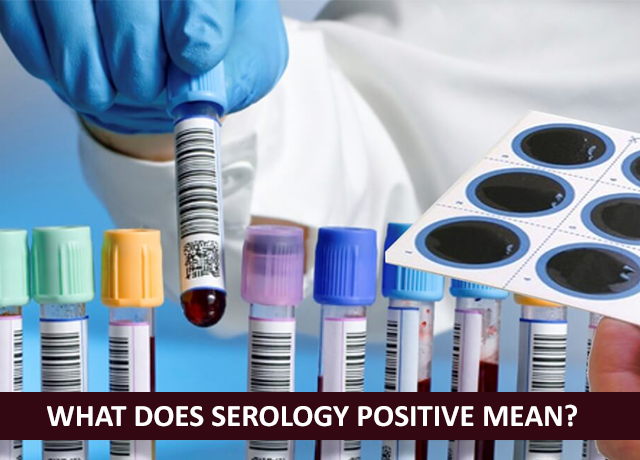 Serology | Diagnostic centre in hooghly