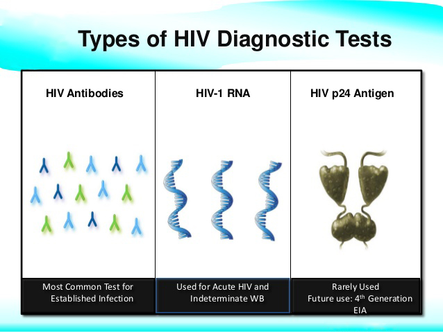 Different Tests to Diagnose HIV- pathology lab in uttarpara