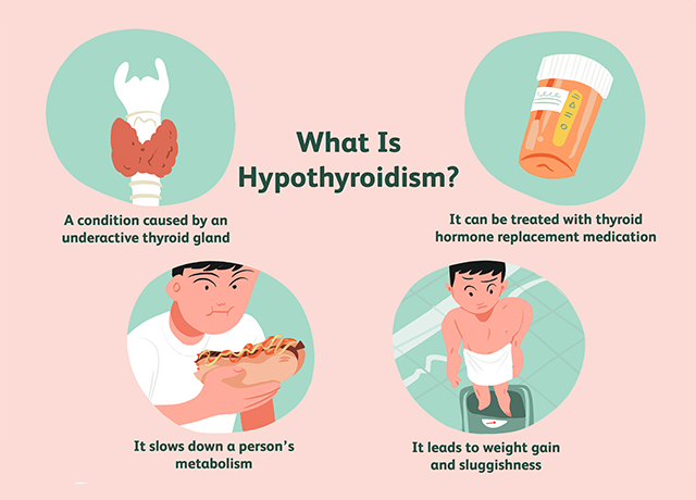 10 Signs and Symptoms of Hypothyroidism