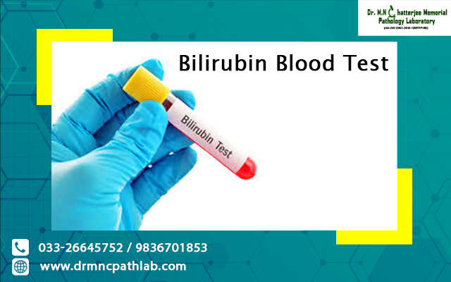 Bilirubin Blood Test