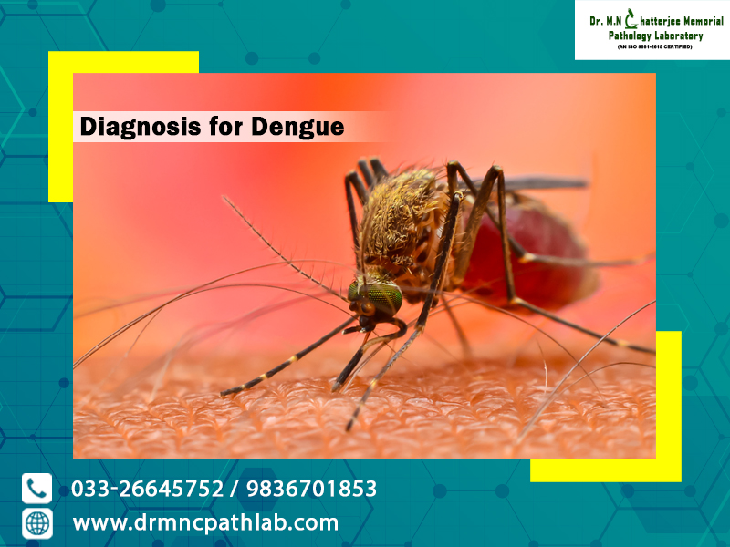 Diagnosis for Dengue