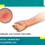 Skin Allergies and Contact Dermatitis