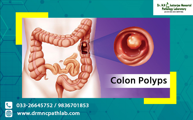 Colon Polyps