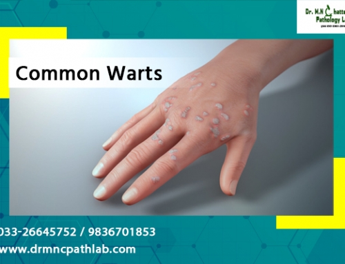 Common Warts