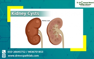 Kidney Cysts