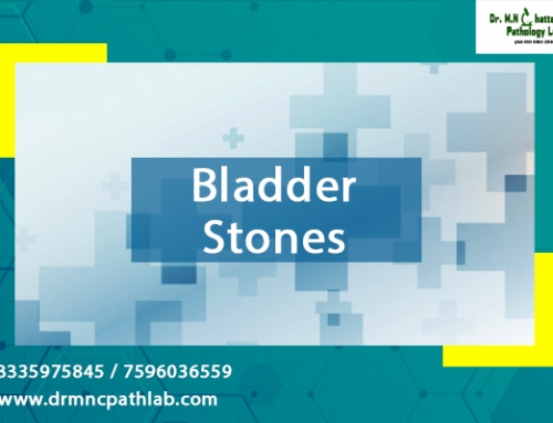 Bladder Stones – Symptoms Causes Diagnosis Treatment