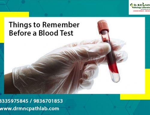 Things to remember before a blood test